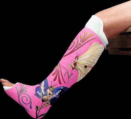 Have Fun With A Broken Arm Cirkus